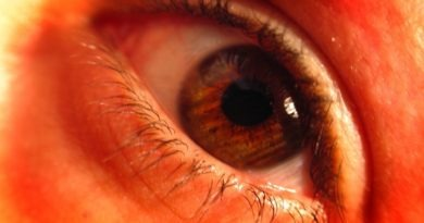Diabetic Retinopathy: Causes to Treatment